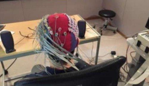 electroencephalogram, EEG